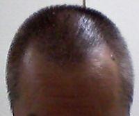 白髪染めトリートメント ルプルプ 口コミ